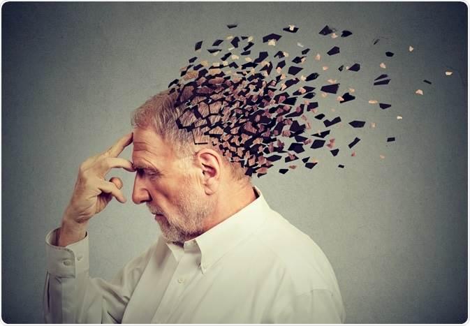 آلزایمر چیست و علائم آن