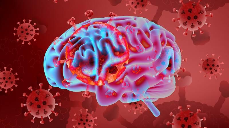 مطالعه نشان می دهد COVID-19 ممکن است باعث پیری مغز شود!