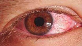 ویروس کرونا و چشم صورتی - راه های جلوگیری از ورم ملتحمه ویروسی