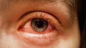 ویروس کرونا و چشم صورتی
