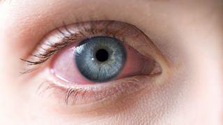 مشکلات چشم که می تواند مربوط به ویروس COVID باشد!