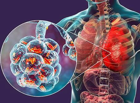 مقایسه ویروس کرونا و RSV ویروس انسدادی تنفسی