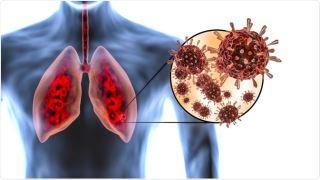 ویروس کرونا و ریه های شما - تاثیر ویروس کرونا بر ریه های شما