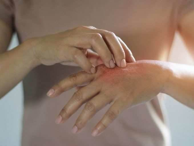 علائم و خطرات ویروس کرونا بر روی پوست