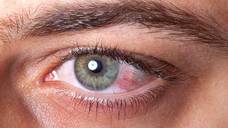 آیا التهاب و قرمزی چشم از علائم کروناست یا خیر؟