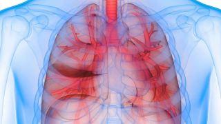 از کمبود آنتی تریپسین آلفا-1 چه می دانید؟