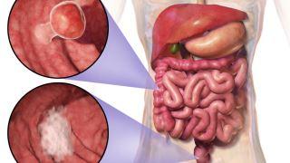 از راه های تشخیص سرطان روده چه می دانید؟