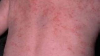 از سندرم ویسکوت آلدریچ چه می دانید؟