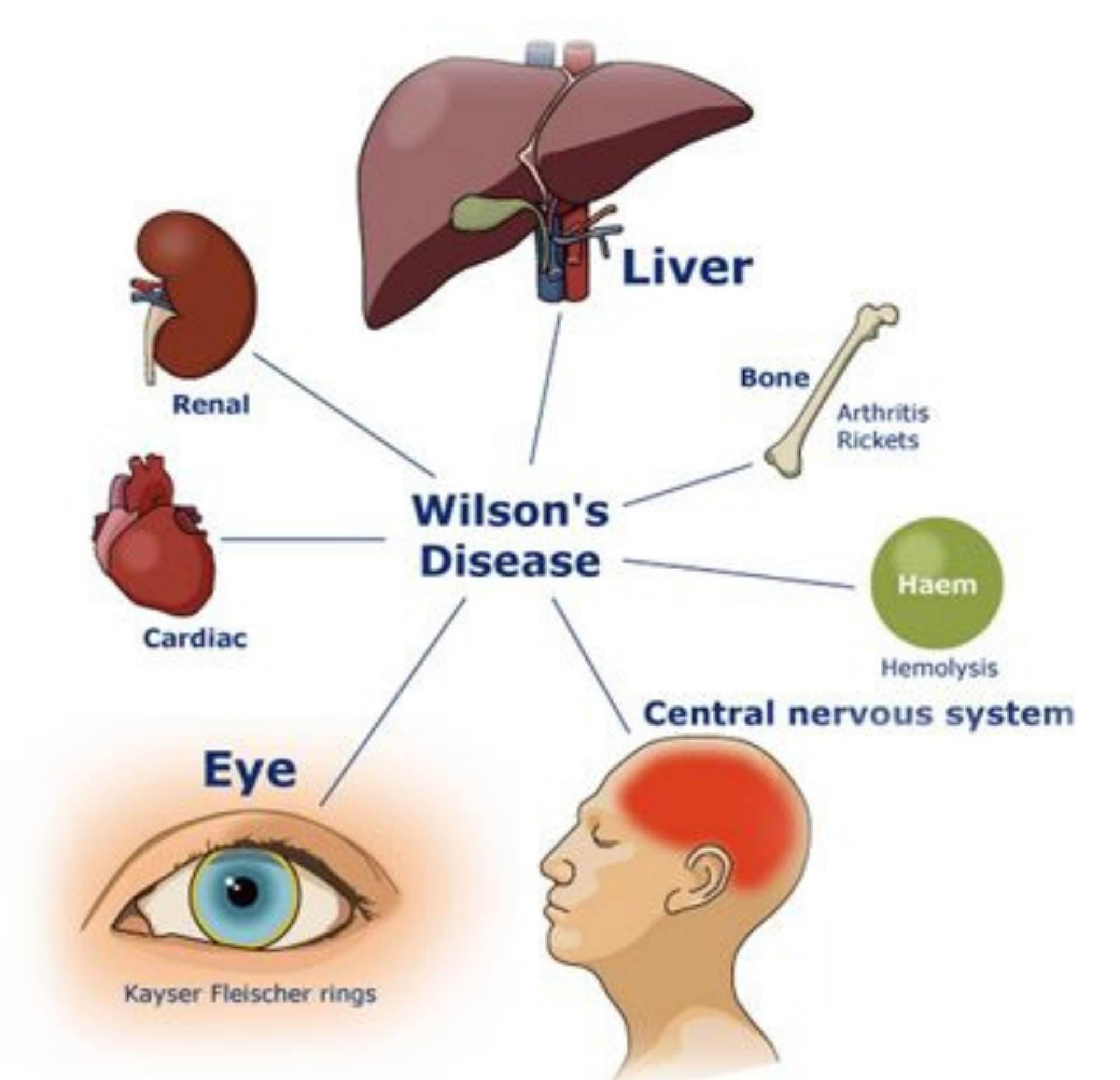 بیماری ژنتیکی ویلسون