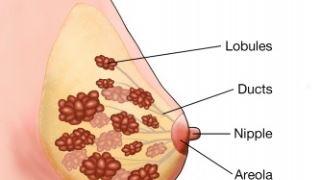 غربالگری سرطان سینه چیست؟ راه هایی برای کاهش خطر ابتلا به سرطان پستان