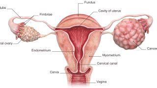 از سرطان تخمدان چه می دانید؟