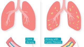 فیبروز کیستیک چیست؟ از علت و علائم آن چه می دانید؟
