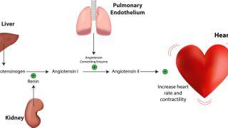 اختلال هورمونی آلدوسترونیسم اولیه چیست؟