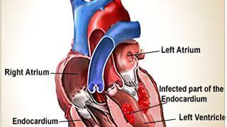 هرآنچه که باید از اندوکاردیت عفونی قلب بدانید!