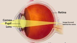 از سندروم ناشنوایی و نزدیک بینی چه می دانید؟
