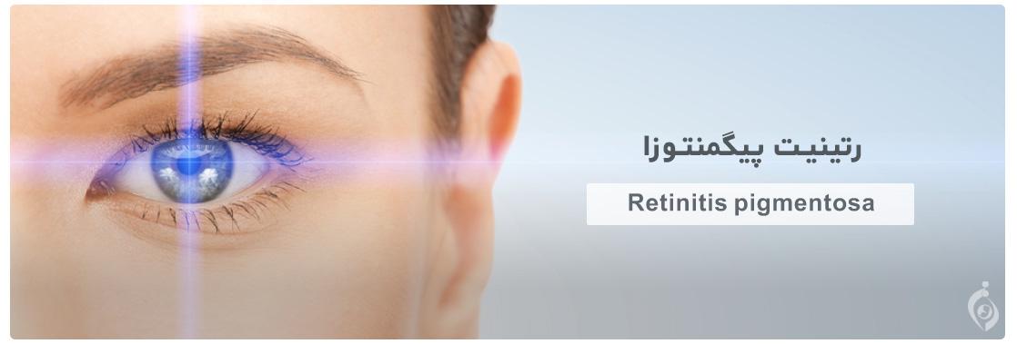 رتینیت پیگمنتوزا (Retinitis pigmentosa)