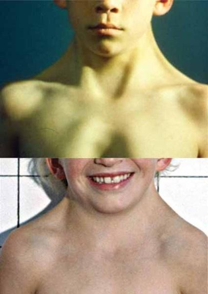 گردن پرده دار