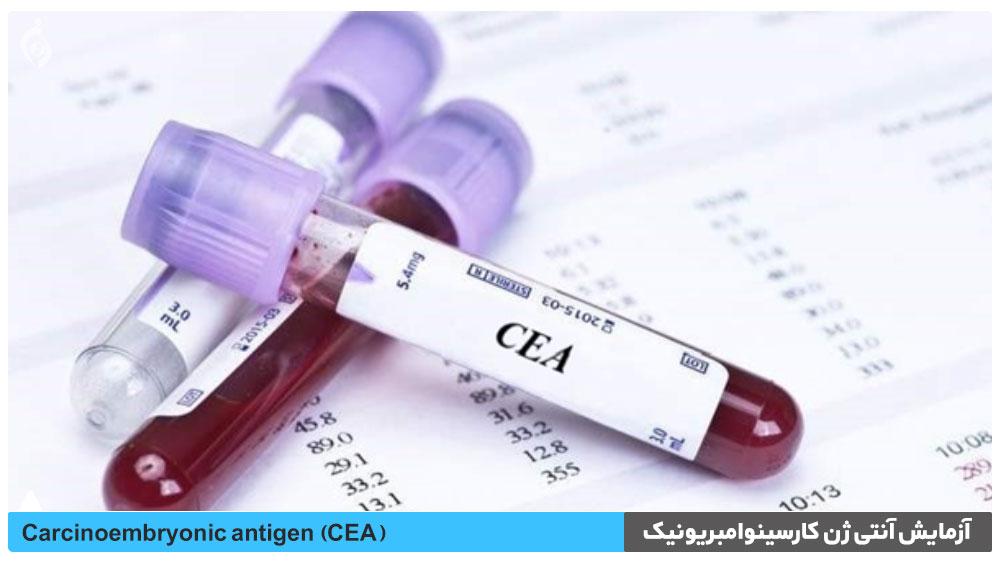 آزمایش آنتی ژن کارسینوامبریونیک (CEA)