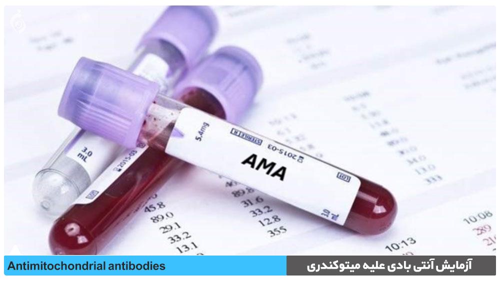 آزمایش آنتی بادی علیه میتوکندری (AMA)