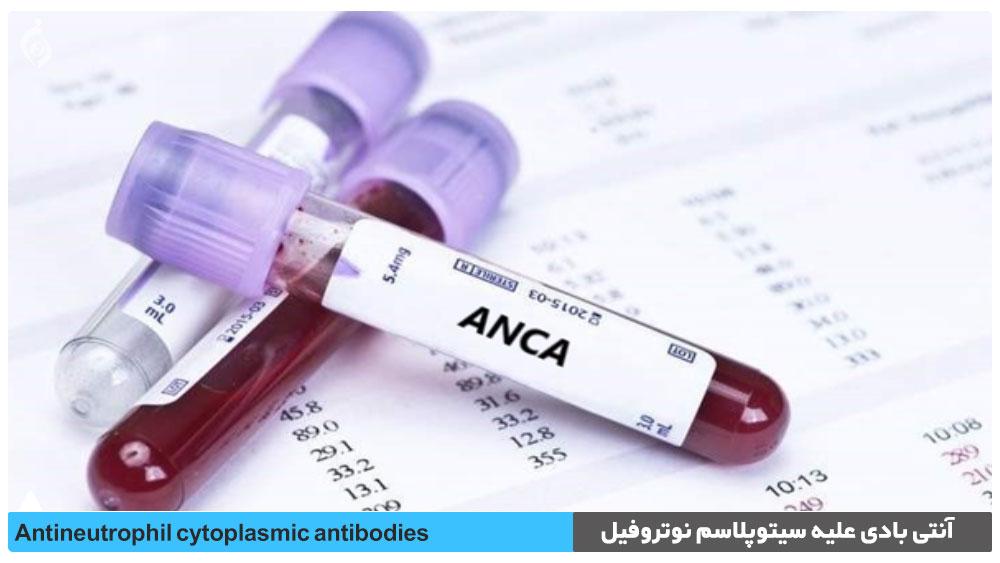 تست آنتی بادی علیه سیتوپلاسم نوتروفیل (ANCA)
