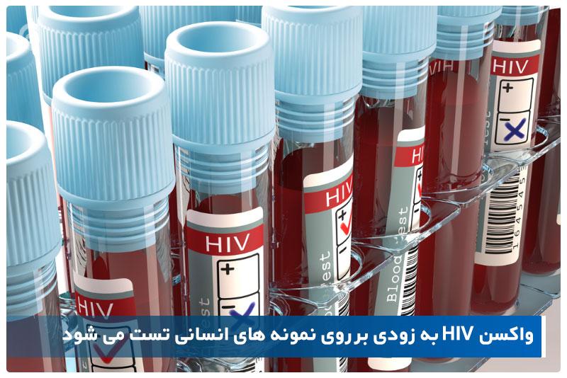 واکسن HIV به زودی بر روی نمونه های انسانی تست می شود