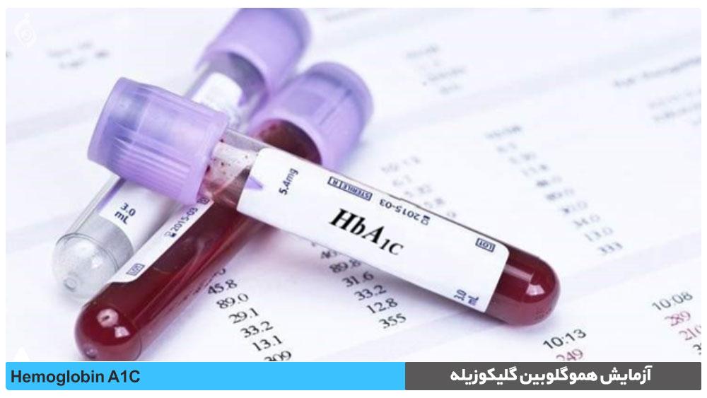 آزمایش هموگلوبين گليکوزيله (HbA1C)