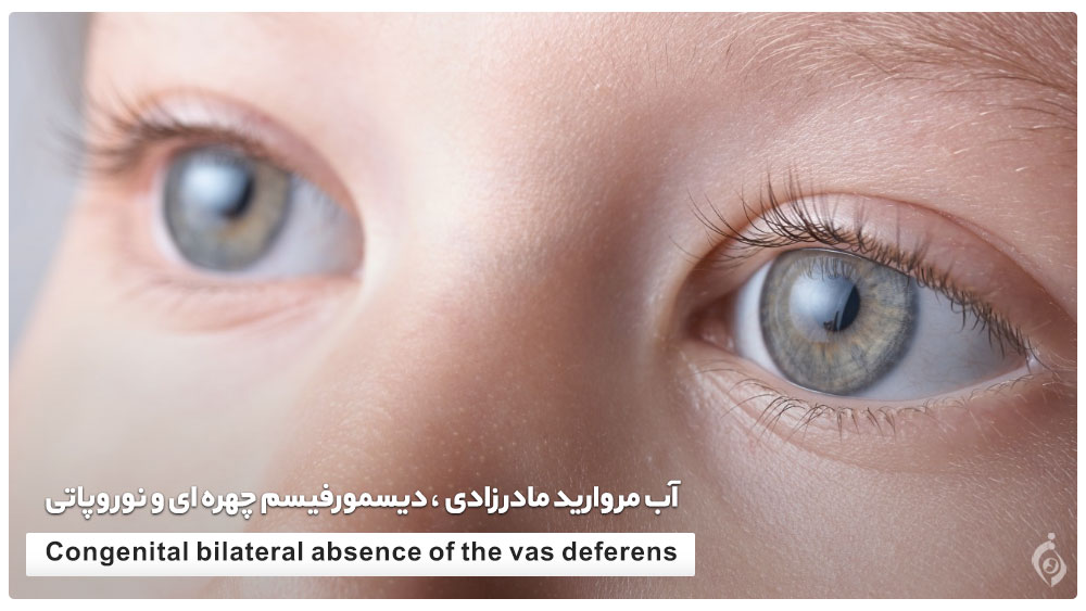 آب مروارید مادرزادی ، دیسمورفیسم چهره ای و نوروپاتی
