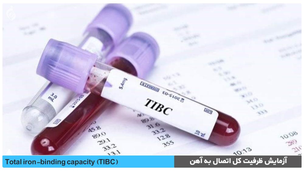 آزمایش ظرفیت کل اتصال به آهن (TIBC)
