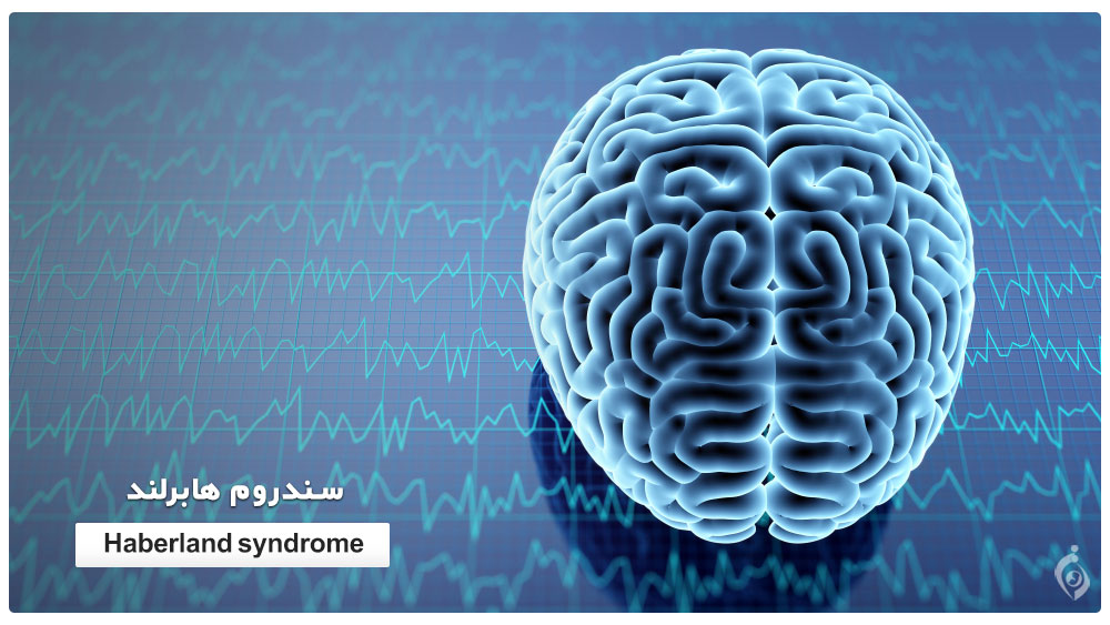 Haberland syndrome