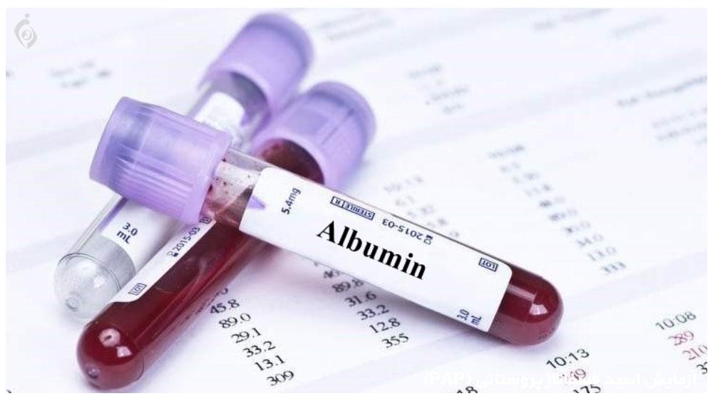 آزمایش آلبومین