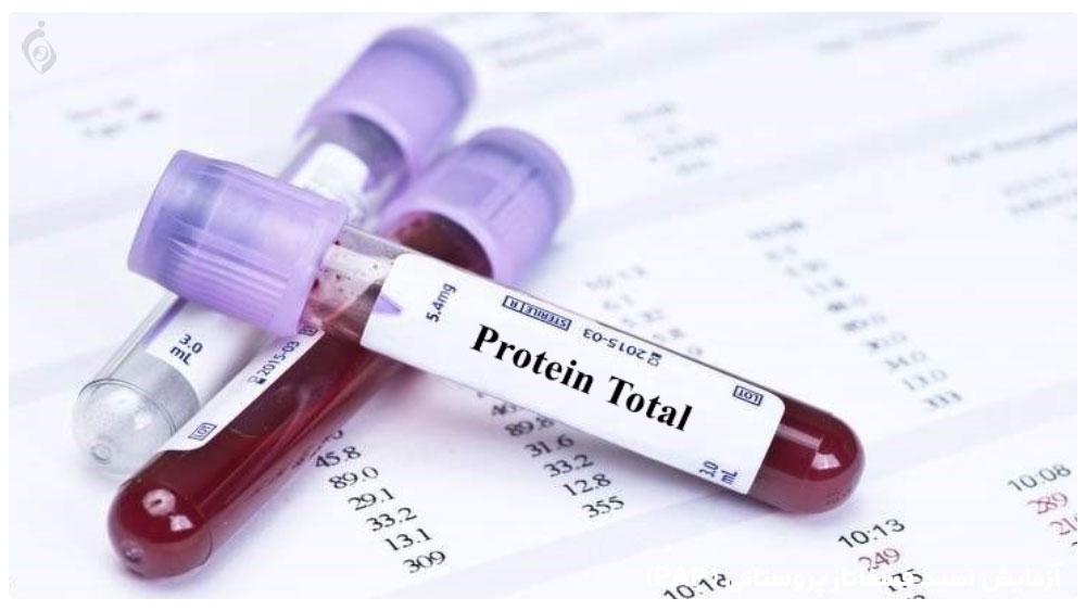 پروتئین توتال (PT)