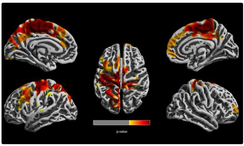 مغز کودکان