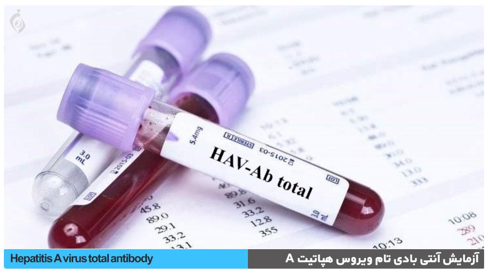آزمایش آنتی بادی تام ویروس هپاتیت A