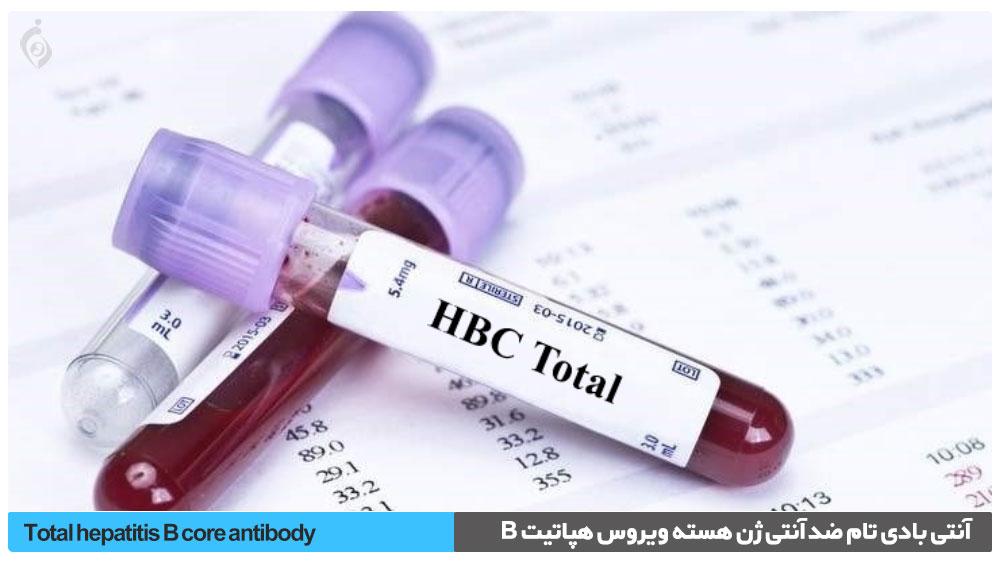 آزمایش (HBc Ab (Total , آنتی بادی تام ضد آنتی ژن هسته ویروس هپاتیت B
