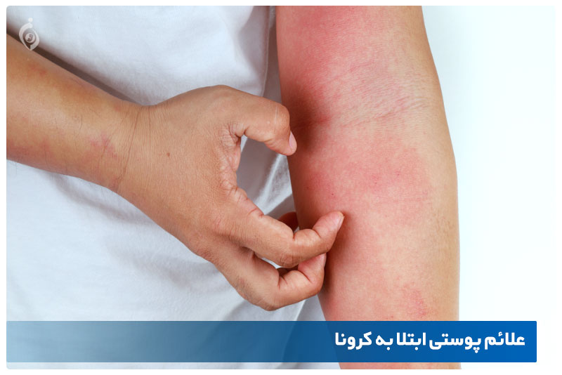 علائم پوستی کرونا