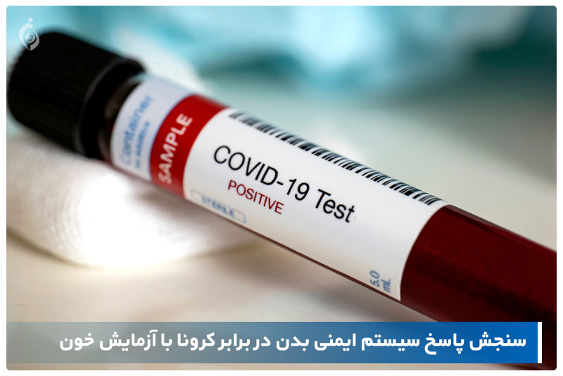 آزمایش خون کرونا
