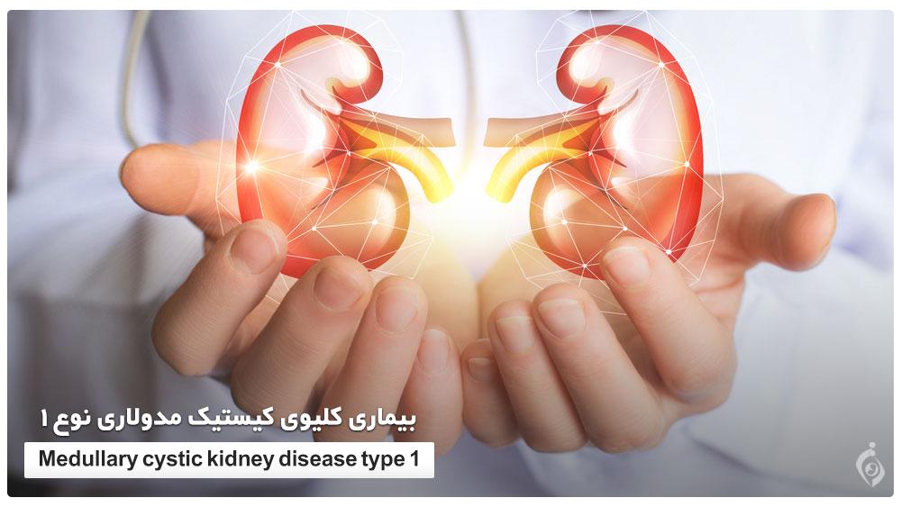 بیماری کلیوی کیستیک مولاری نوع 1