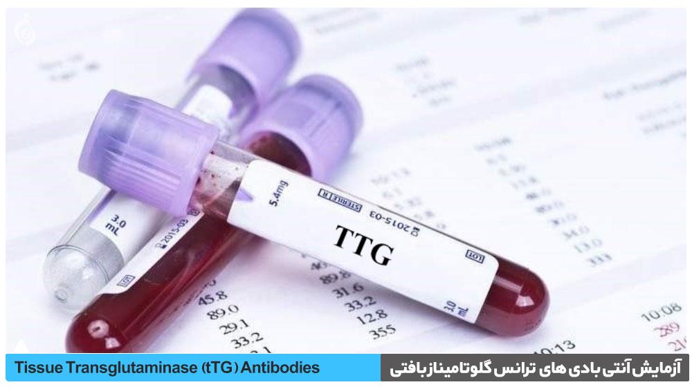 آزمایش آنتی بادی های IgA/IgG ترانس گلوتامیناز بافتی