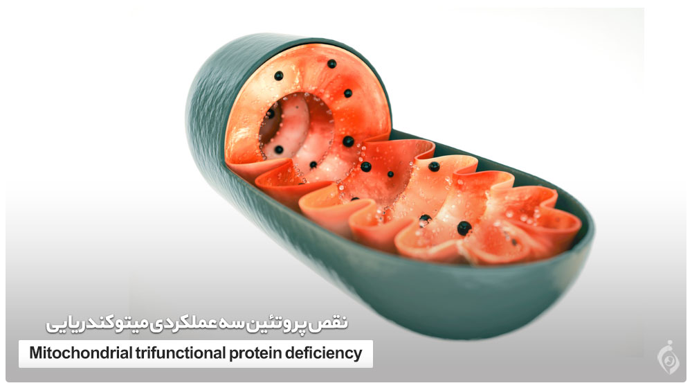 نقص پروتئین سه عملکردی میتوکندریایی