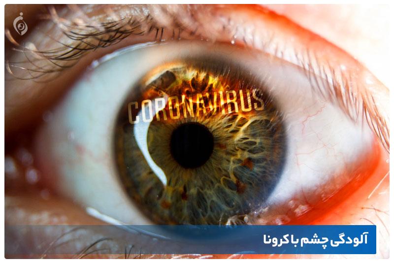 آلودگی چشم با کرونا